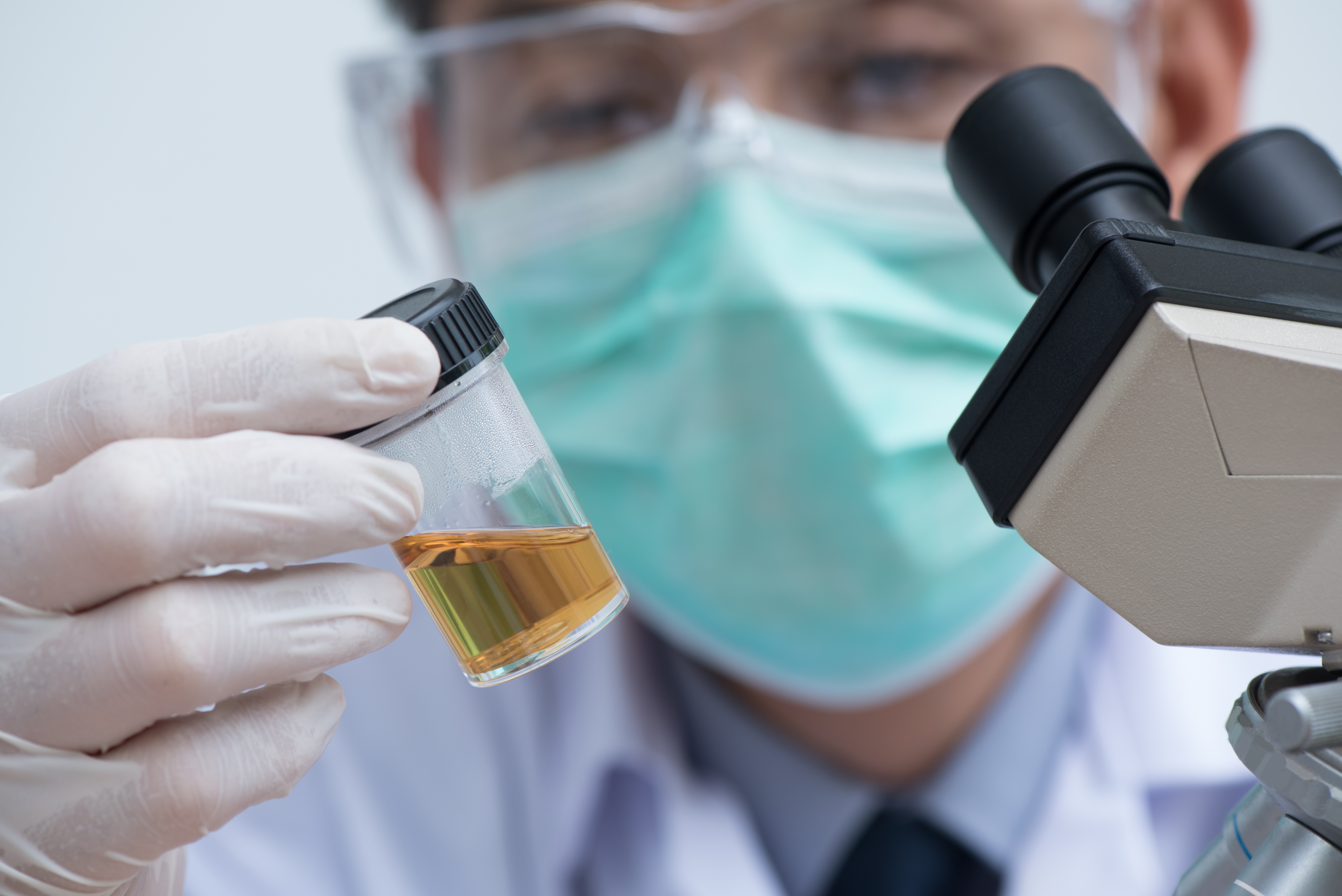 Scientist looking closely at a urine sample